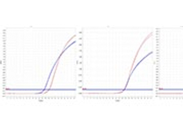 Gen-Expressionsanalysen in solid pseudopapillären Neoplasien (SPN) des Pankreas