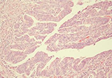 Genexpressionsanalysen von proliferationsrelevanten Genen beim kolorektalen Karzinom