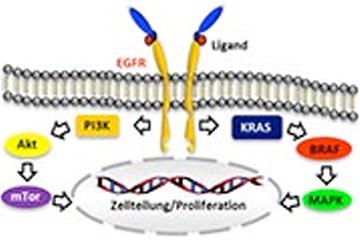 Genetische Testung an Lungenzytologie-Präparaten: Machbarkeit und Mutationsverteilung (EGFR, KRAS, EML4-ALK, TP53). Kooperation mit der Lungenklinik Großhansdorf