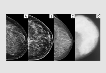 Mammographic density and inter-observer variability of pathologic evaluation of core biopsies among women with mammographic abnormalities