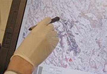 PaKaNostra: Identifizierung und Validierung von Drug Targets aus Pankreaskarzinomen durch innovative Strategien